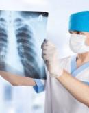 'Торакальный хирург – при каких заболеваниях показана консультация и какие органы оперирует